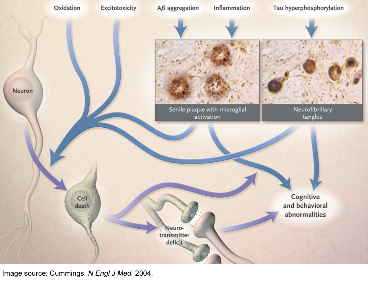 Alzheimer's disease pathophysiology – Cummings 2004 image